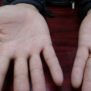 掌蹠膿疱症と鼻炎