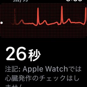 watchOS 7.3 心電図