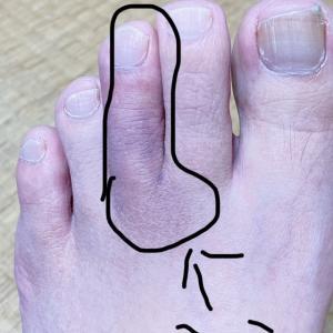 私の足…すごいことになってる(T ^ T)②