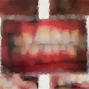 歯列矯正*初カウンセリングでまさかの結果