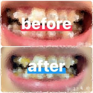 歯列矯正*ブラケットについて色々と1ヶ月の比較
