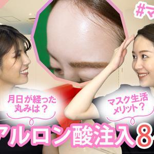 【YouTube『Dr.聖子チャンネル』】【術後8ヶ月経過】額ヒアルロン酸注入、その後♪ ナチュラルカーブでマスク美人!?