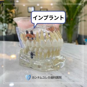 【韓国の歯医者】歯を失ってしまった場合の治療方法