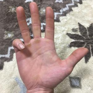 林業とバネ指