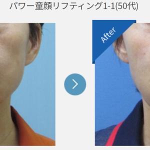 ハルクリニック症例写真☆目に見えて童顔効果絶大な糸リフト!!