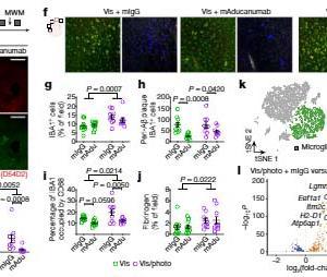 Aβ抗体療法成功の鍵は髄膜リンパ管が握っている?