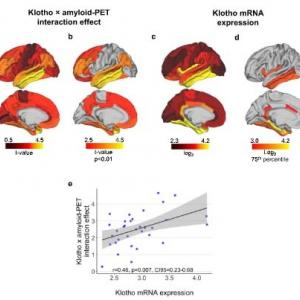 Klotho-VSヘテロを持つ人達は、Aβ依存的タウの沈着および認知機能低下が少ない。