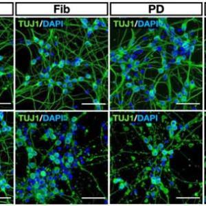 PD/MSA由来増幅 α-Syn の ドパミン神経細胞毒性についてと、DJ-1 欠失の影響について検証