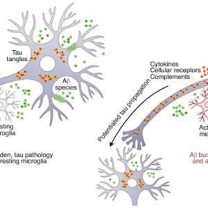 活性化ミクログリアがタウ病理の広がりを介在する……かも