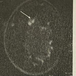 がんが見付かった経緯⑱初めて知る腫瘍2個は繋がっていた事【乳がんの記録】