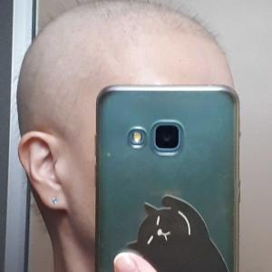 しつこい痛み😠と禿げ頭🤣