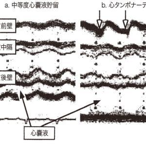 RUSH (Rapid Ultrasound inShock)、POCUSとしてのPUMP(心エコー)