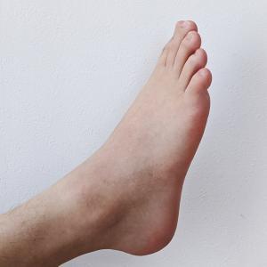 運転で右足が痛い原因と対処方法とは?!