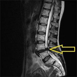足の痺れの一つ 脊柱管狭窄症について