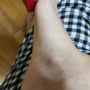 足の裏が痛い原因は扁平足のため足底筋膜炎に!なのでフットサポーターを買ってみた❗