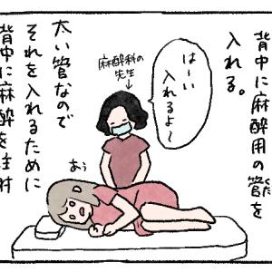 妊娠高血圧症での出産レポ漫画52 背中に麻酔の管を入れる