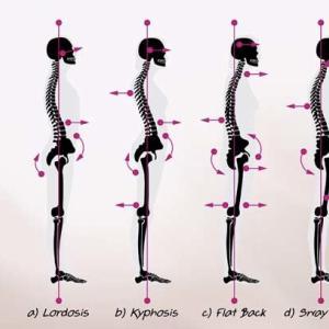姿勢と腰痛