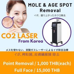 【CO2 Laser】CO2レーザー・・・ホクロ、イボ除去
