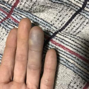 左指を負傷して知る痛みからの精神的気力低下
