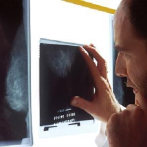 健康診断 その場で異常が発見された時どう対応されるのか
