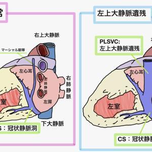 左上大静脈遺残(PLSVC)と3本脱血の関係