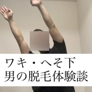 【体験談】26歳男が湘南美容外科でワキとへそ下脱毛してきた感想