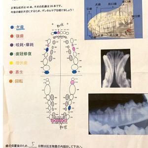 11本も抜いた歯周病の手術(>人<;)