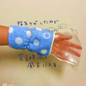 指を怪我した後のお風呂対策の話