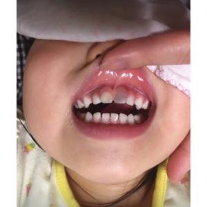 4歳0か月 歯の事情(4歳)