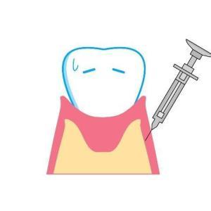 【7才・小2】歯医者さんで初めて乳歯を抜く。ドキドキの麻酔初体験!