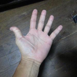 手の平の「ほくろ」
