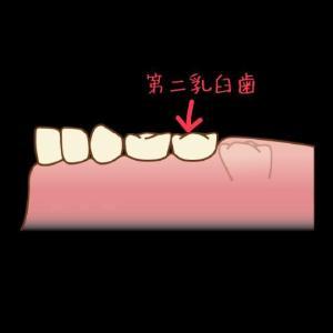 まだ7才なのに第二乳臼歯を抜歯してきました。