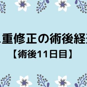 切開修正の術後経過【11日目】