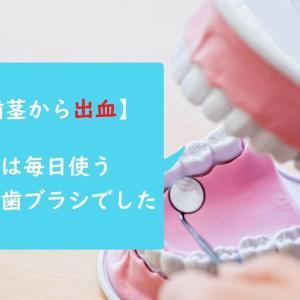 【歯茎から出血】原因は毎日使う歯ブラシでした