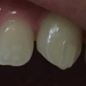 ついに八重歯に隙間が!フロスが楽々通る~(#12ー2)
