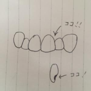 まさかの虫歯発見・・・ インビザ中はどうなる?