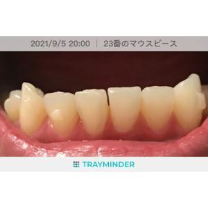 すきっ歯が出現!(23枚目)