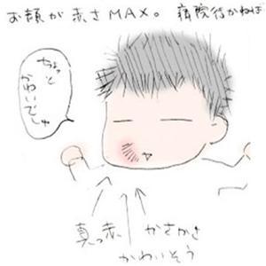生後3か月(生後92日~101日)の育児日記:赤ちゃんの肌荒れに悩む…