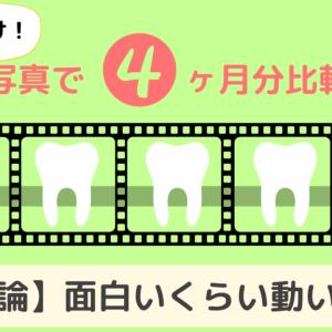 【4ヶ月分!上の歯だけ比較!】16枚目から31枚目まで、一気に比較!結論、面白いくらい動いてる。
