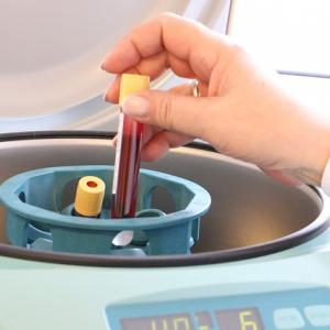 """【在宅透析のサブ業務】在宅血液透析(HHD)では、""""採血""""も患者自身で行います!"""