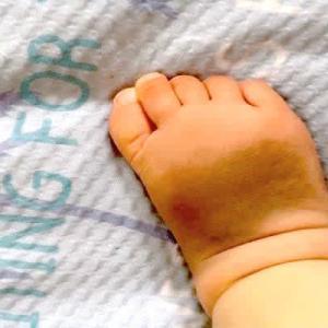 赤ちゃんの蒙古斑が足に!?あざを周りに指摘されると不安になってしまい…