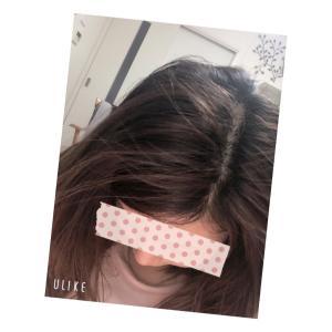 最近の髪の発毛経過!