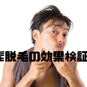 【1年でも効果実感】青髭のひげ脱毛記録②【メディオスター】