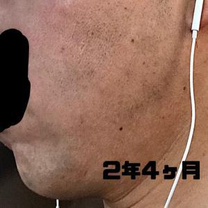 【費用と照射回数公開】青髭のひげ脱毛記録を公開③最終【メディオスター】※画像あり。