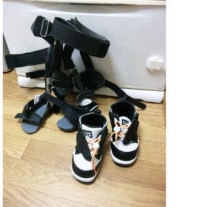 ③【治療記録】O脚矯正装具をつけてからの経過記録について