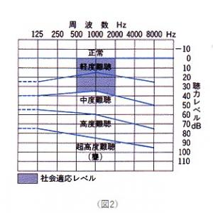 突発性難聴覚書-13  【 聴力検査   】