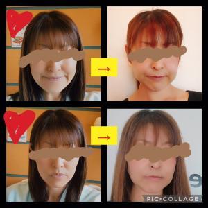 顎変形症 退院後 -笑顔の違いについて-
