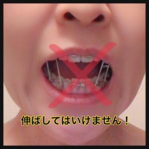 口腔外科 2回目