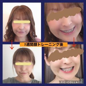 【顎変形症 術後】顔のトレーニングやマッサージについて