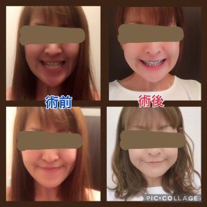 【顎変形症】術前と術後笑顔の比較